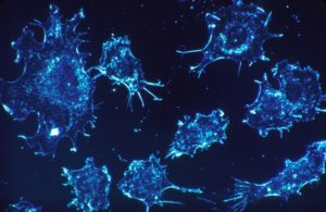 Wang-cancer-cell-NCI