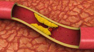 fish-oli-and-cholesterol